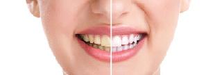 TeethColour