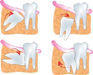 Wisdow Teeth
