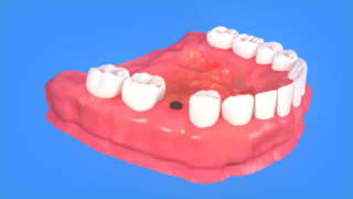 techniques used in dental implants