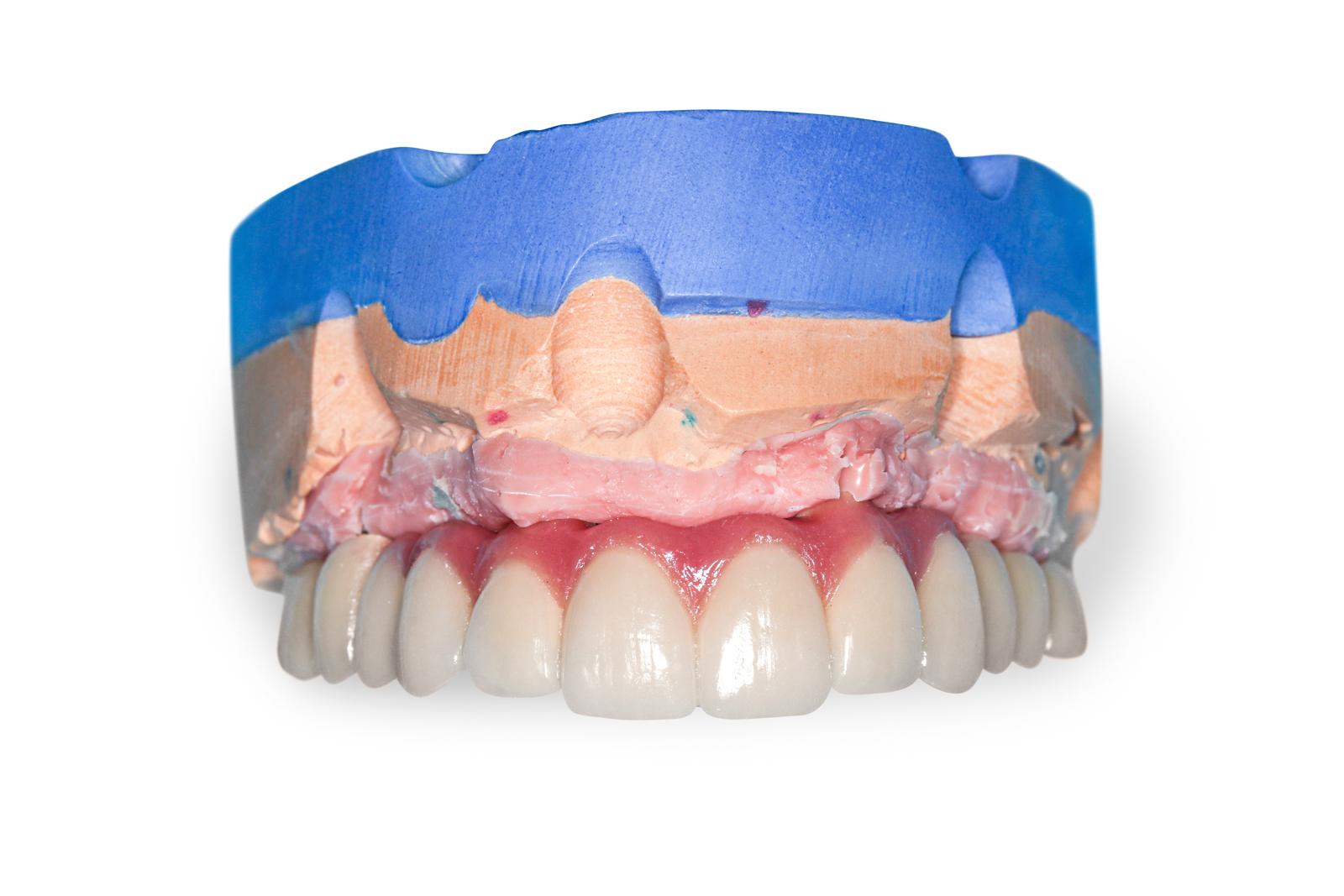 Dental Implants bridges