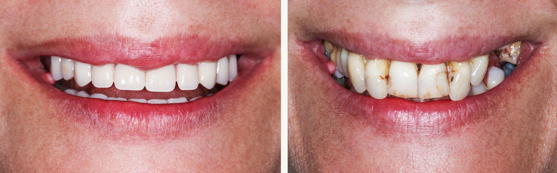 dental implants, dentures