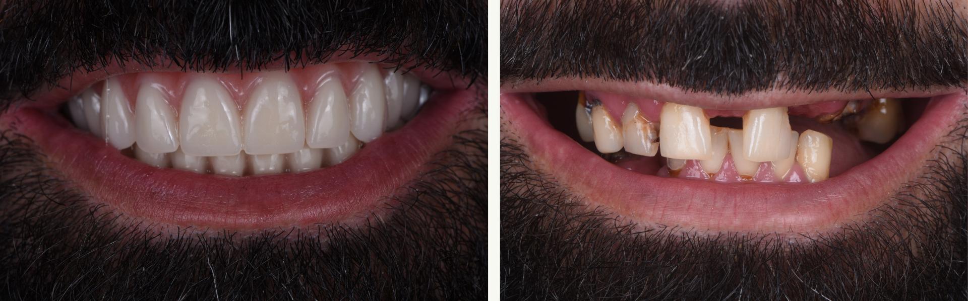 full mouth dentures