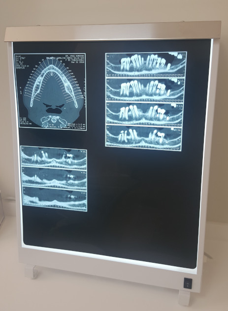 computerised axial tomography scan