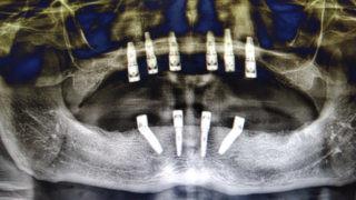 Full-mouth-dental-Implants