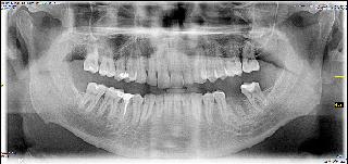 orthopantomogram